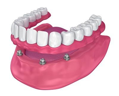 Dentures Diagram | New Lambton Dentures